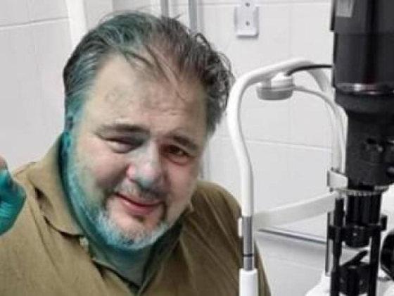 Ruslan in ziekenhuis met gif op gezicht